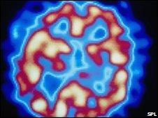 Escáner de paciente con esquizofrenia