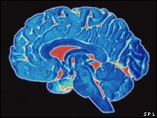 Cérebro humano (SPL/arquivo)
