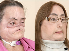 Connie Culp, estadounidense que se sometió al primer transplante de cara de su país.