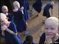 Albinos en África