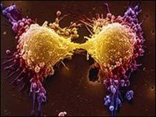 خطوة الى الإمام في علاج سرطان البروستات 090623175019_prostat