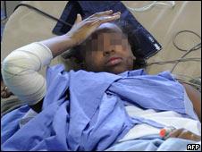 Baya Bakari tras sobrevivir siniestro aéreo en Yemen en 2009
