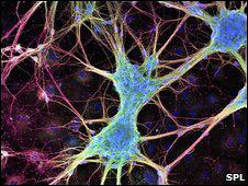 Hallan forma de dirigir medicinas al cerebro