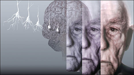 болезни Альцгеймера - Здоровье@Mail.Ru.