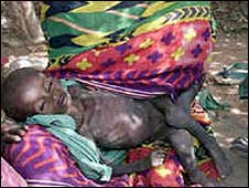 埃塞俄比亞飢餓兒童