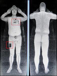 Escáner corporal completo