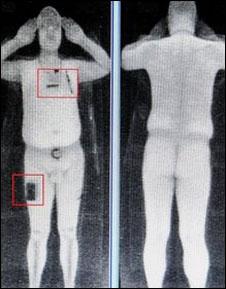 Imagen de escaneo corporal completo