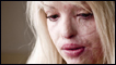 Katie Piper - burnt in an acid attack