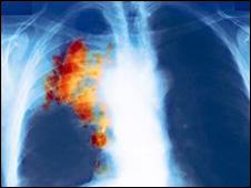 إكتشافات واختراعات  متنوعة 091111021434_lung226