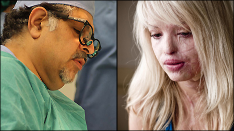 Latest On Katie Piper http://www.bbc.co.uk/worldservice/programmes/2009/11/091118_outlook_acid_surgeon.shtml