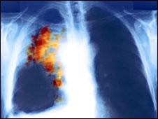 X-ray phổi bị ung thư