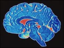 Sección del cerebro