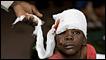 Niña herida en Puerto Príncipe