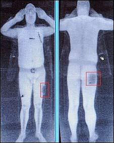 Scanner de Corpo