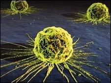 Célula cancerosa de mama