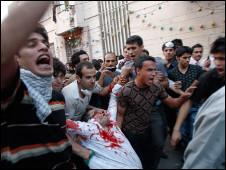 تصویر معترض ایرانی که مجروح شده است