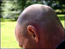 """الخبراء يدعون اكتشاف """"السبب الاساسي"""" للصلع عند الرجال من البي بي سي 100316154648_baldness_226x170_nocredit"""