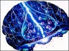 Representación de un cerebro con epilepsia