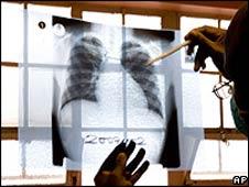 Radiografía pulmonar