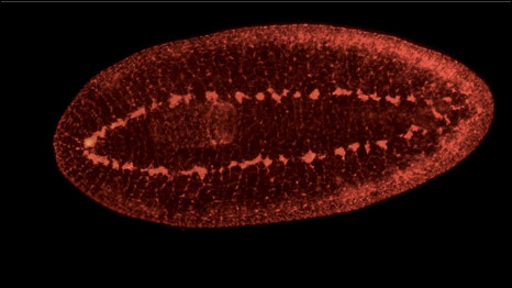University of Nottingham photo of Planariam worm (flatworm) with no brain
