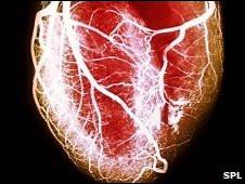 """الحزن على وفاة عزيز """"يرفع نسبة الإصابة بتغيرات خطيرة في القلب"""" 100506103210_heart_226x170_nocredit"""