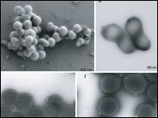 Imagens de células M. mycoides, utilizadas no estudo (Foto: Cortesia Science/AAAS)