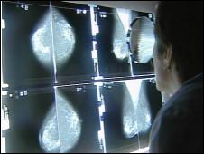 Radiografías de mama