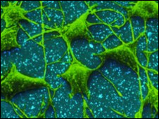 100809102919 nerve cells 226x170 nocredit - K�k h�cre ile farelerin omurilik sinirlerindeki h�creler yenilendi