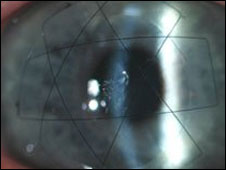 Córnea biosintética logo após o transplante   Foto: Neil Lagali