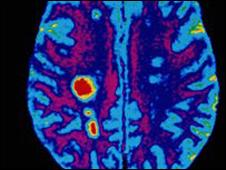 چشم انداز موفقیت در مهار بیماری اِم اِس - فیزیوتراپیست وحید صادقی