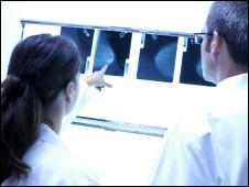 طبيبان يفحصان صورة اشعة لخلايا سرطانية
