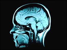 阿茲海默症患者大腦萎縮速度比平常人更快。