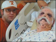 Homem atacado por abelhas no Texas (Foto: San Marcos Daily Record/AP)