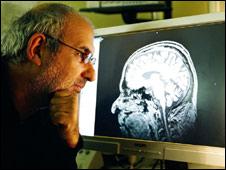 باحث أمريكي يخطط لتسجيل وتفسير الأحلام إلكترونيا 101018124344_brain226