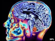 Gráfico cerebral mediante resonancia magnética.