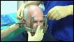 ثقب في الجمجمة لعلاج الصداع المزمن