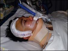 Vũ Ngọc Minh trong bệnh viện