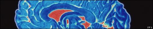 Imagen del cerebro