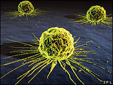 Célula cancerosa de mama (SPL)