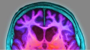 El cerebro se encoge antes de que aparezca el Alzheimer