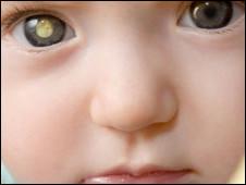 Ilustração de retinoblastoma (BBC)