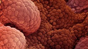 لقاح لعلاج سرطان البروستاتا
