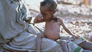 طفل جائع