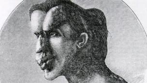 Joseph Merrick, el hombre elefante