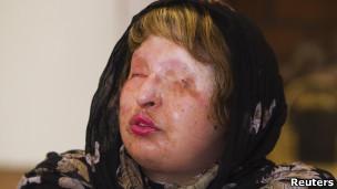 Iraniana perdoou homem que deformou seu rosto minutos antes de punição que o deixaria cego