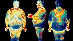 Imagen calórica de personas obesas