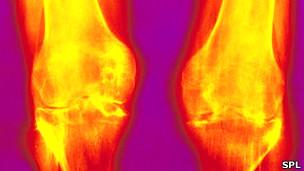 Osteoartritis de la rodilla
