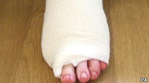 Pie vendado sin el dedo gordo