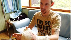 Paciente James Byrne