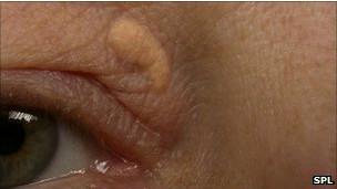 Sinais de xantelasma na região em torno da pálpebra